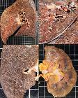 Gross pathology of miliary tuberculosis