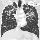 PulmonaryTBCor