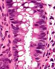 Cryptosporidiosis - very high mag - cropped
