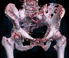 3D rendered CT of hip bone metastases