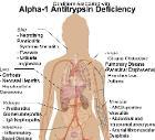 Conditions associated with Alpha-1 Antitrypsin Deficiency