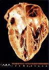 Heart pathology Chagas disease