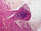 Skin Tumors-P6231211