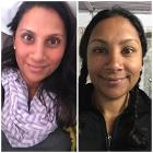 Peripheral edema of a woman's face, before and after; Annapurna Base Camp, 2015