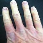 Multicolor Raynaud's Right Hand