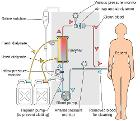 Hemodialysis-en