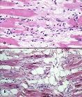 Arrhythmogenic right ventricular cardiomyopathy - histology