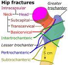 Hip fracture classification