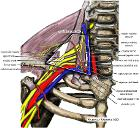 Wikipedia medical illustration thoracic outlet syndrome brachial plexus anatomy with labels