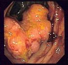 Colorectal cancer endo 2