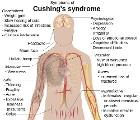 Cushing's syndrome (vector image)