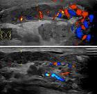 Ultrasonography of epididymitis