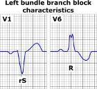 Left bundle branch block ECG characteristics