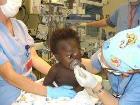Baby with encephalocele