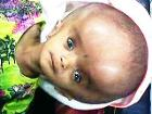 Hydrocephalus with sunset eyes