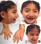 5-year-old Mexican girl with Angelman syndrome (cropped)