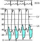 Mitral stenosis pressure tracings