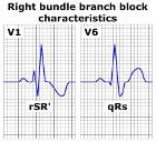 Right bundle branch block ECG characteristics