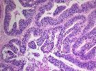 Medulloepithelioma Histology