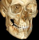 3D CT of bilateral mandible fracture