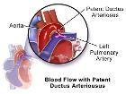 Blausen 0707 PatentDuctusArteriosus