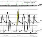 Hypertrophic Cardiomyopathy - Intraventricular Pressure Tracing