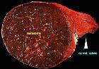 Spleen hamartom