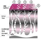 A Course of Shingles diagram