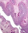 Luteinized follicular cyst