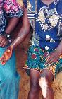 Healed Buruli ulcer lesions