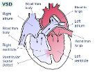 Ventricular septal defect-en