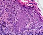 Skin Tumors-479