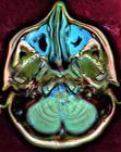 Brain MRI 112010 rgbca