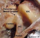 Middle cranial fossa surgical anatomy - J M Kartush