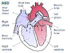 Atrial septal defect-en