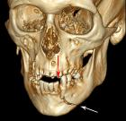 3D CT mandible fracture