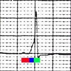 WPW EKG leadV2