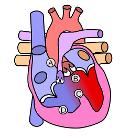 Heart tetralogy fallot
