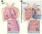 Lymphangioleiomyomatosis
