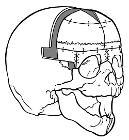 Wiki trigonocephaly2