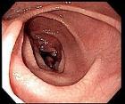 Celiac endo
