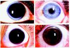 Four representative slides of corneal arcus