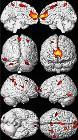 Decreased Brain Volume from Lead Exposure