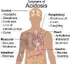 Symptoms of acidosis