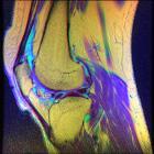 Knee MRI, T1T2PD 08